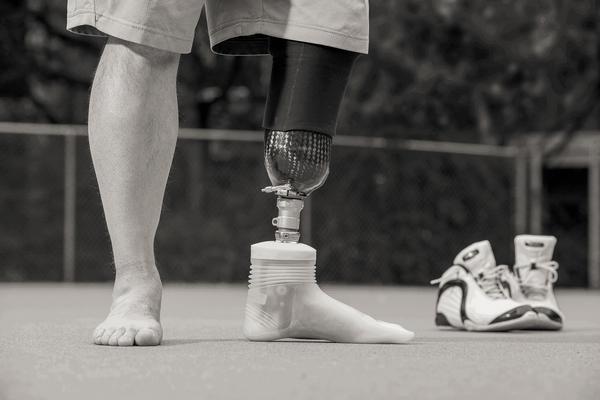 prothese pour amputation de pied chabloz orthopedie